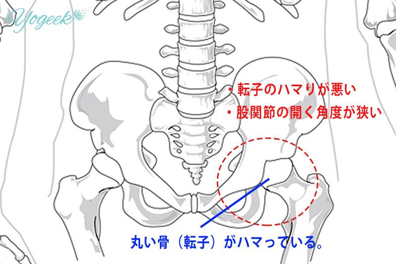 骨盤と転子の図